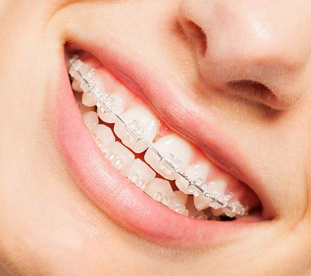 Cary Clear Braces