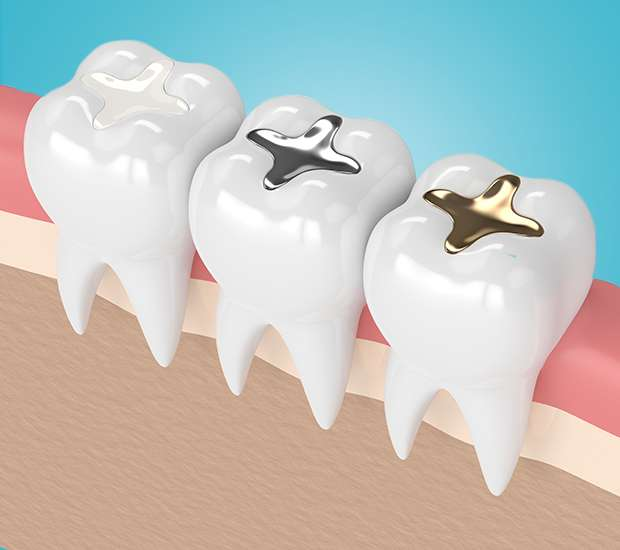 Cary Composite Fillings