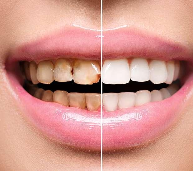 Cary Dental Implant Restoration