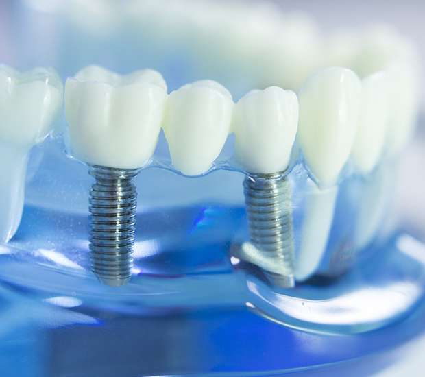 Cary Dental Implants