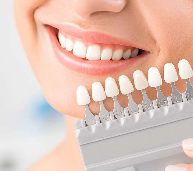 Cary Dental Veneers and Dental Laminates